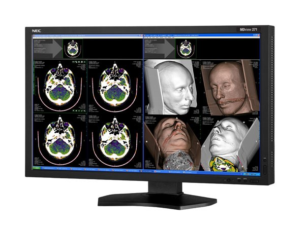 NEC MDview272